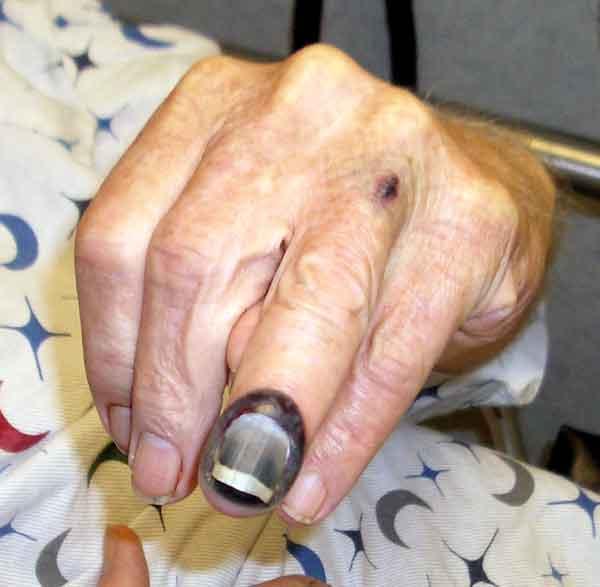 subungal-hematoma.jpg